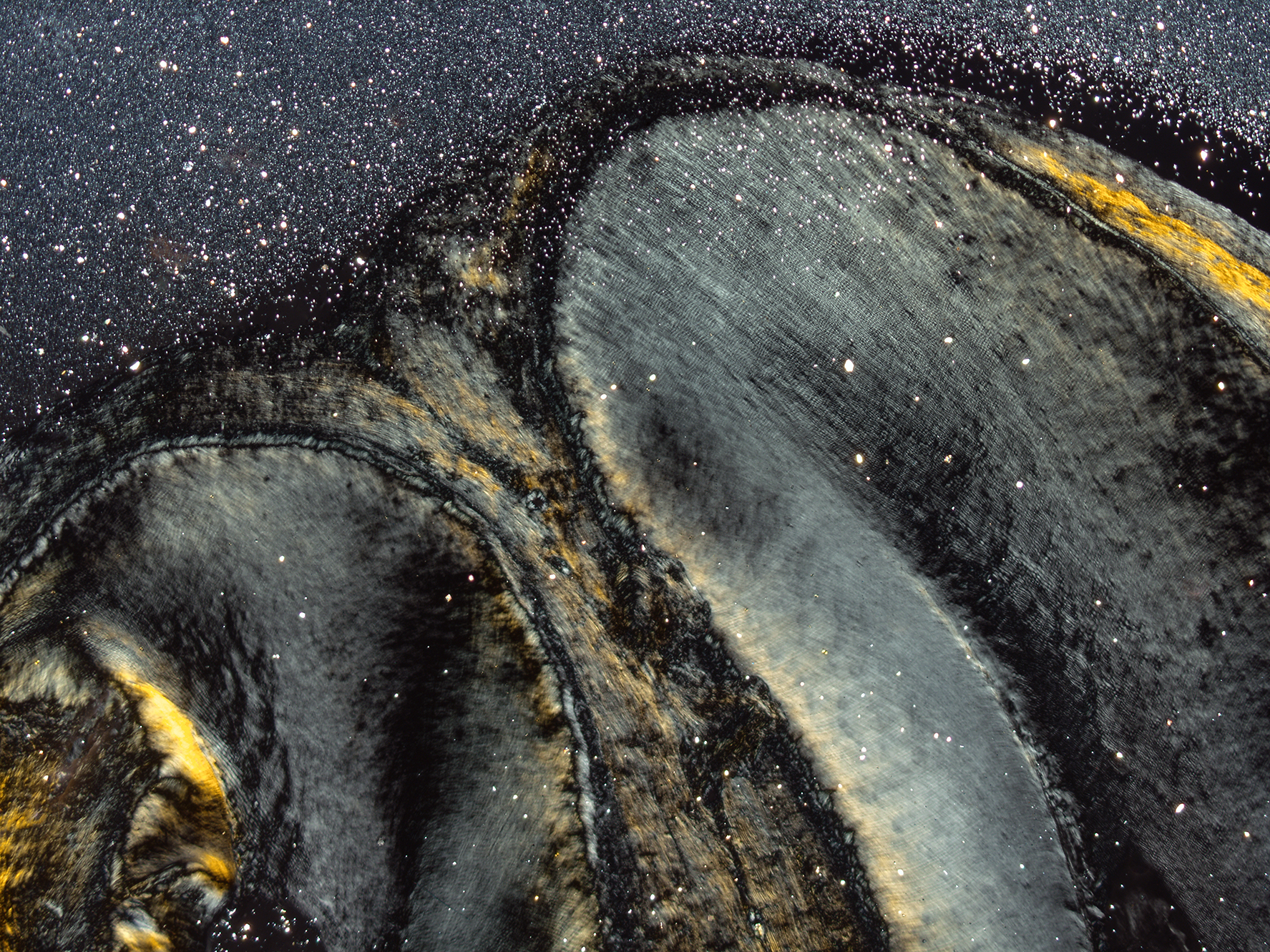 Starry night – Periapical region
